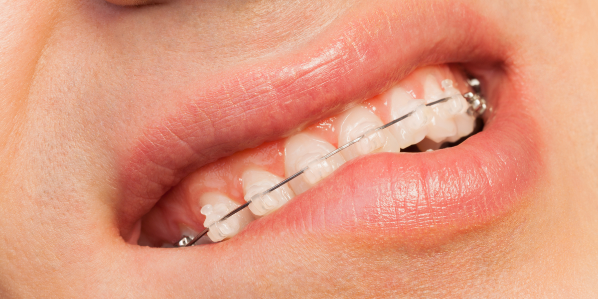 6 Recommendations To Reduce Pain With Braces In South Pasadena, CA