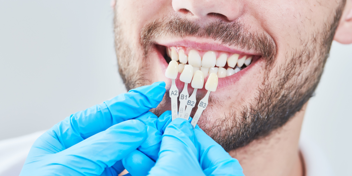 What Are My Cosmetic Dentistry Choices In South Pasadena, CA?