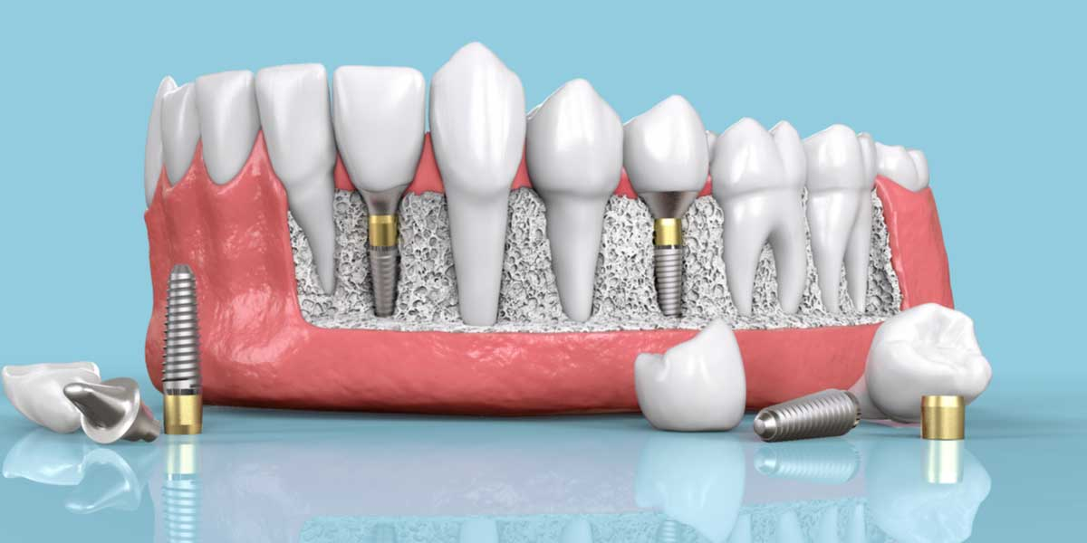Dental Implants in South Pasadena, an Overview of the Procedure