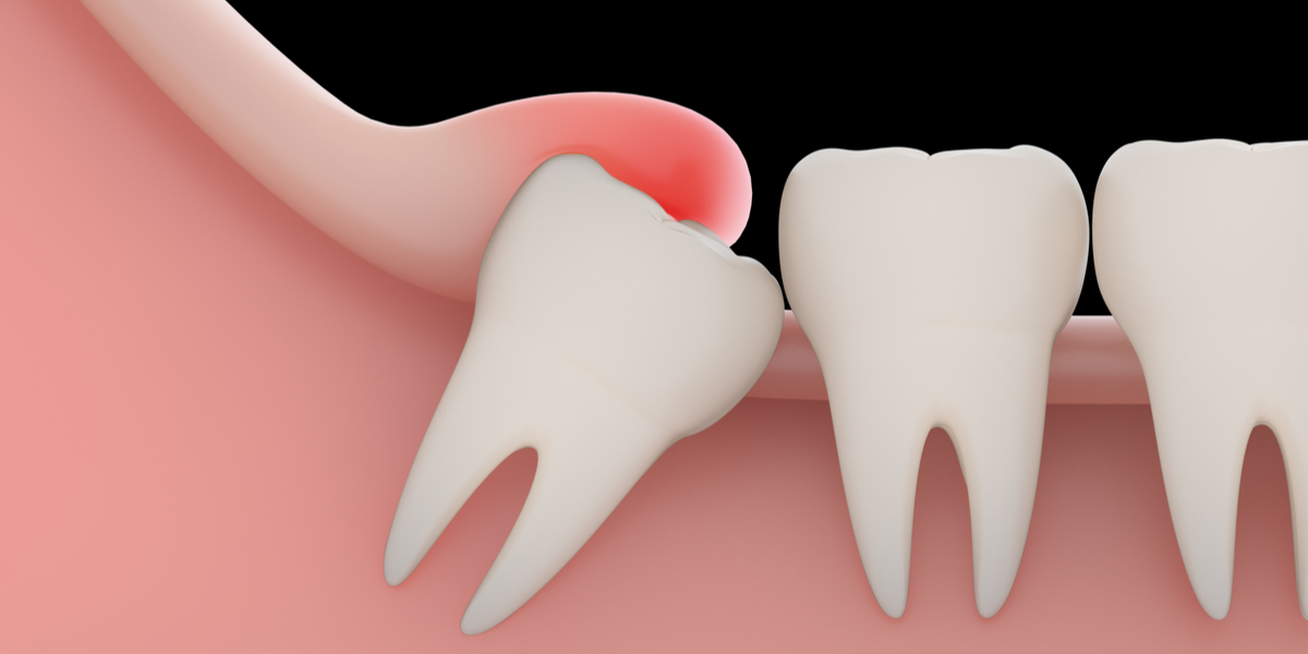 Signs You Need Your Wisdom Teeth Extracted