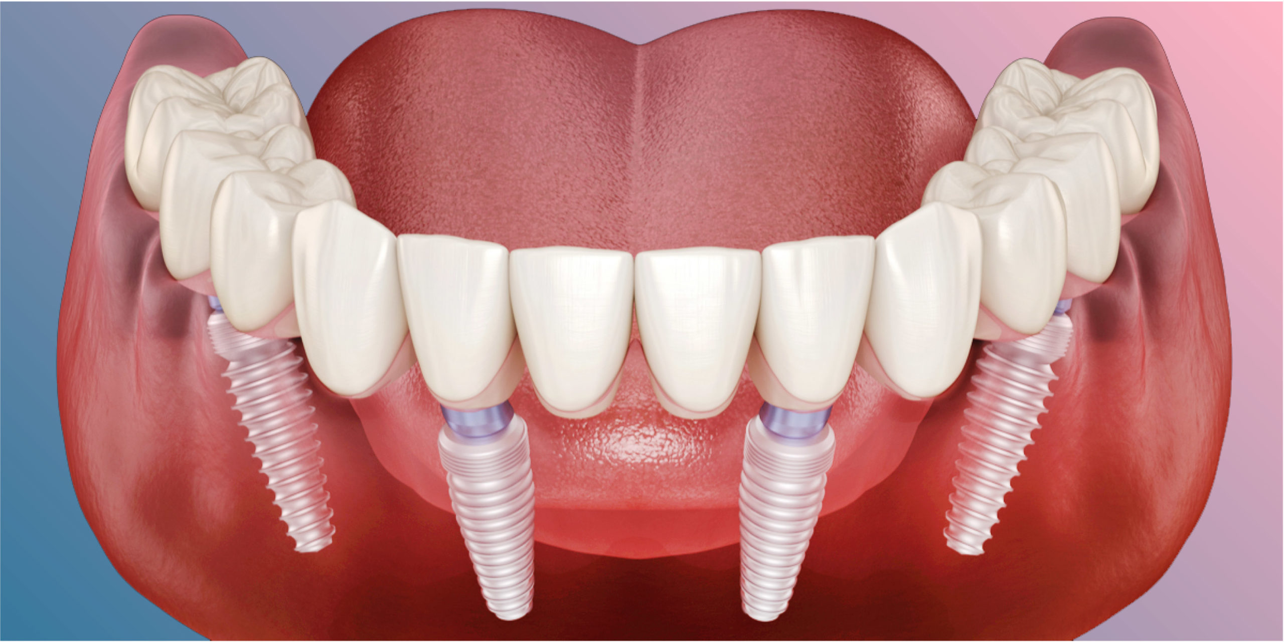 How To Decide Between All-On-4 And All-On-6 Dental Implants In South Pasadena, CA