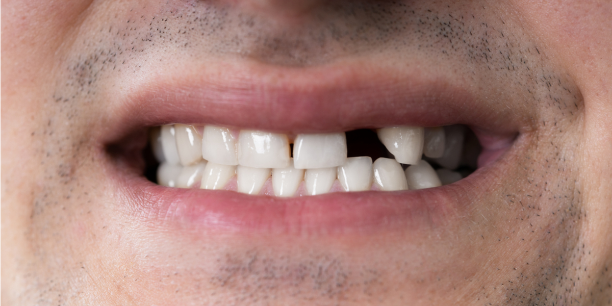 Do I Need A Tooth Replacement in South Pasadena, CA?