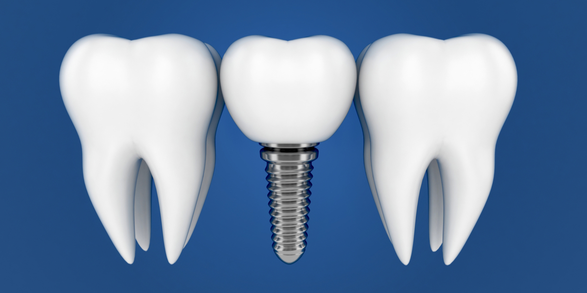 Tooth Implants in South Pasadena, CA